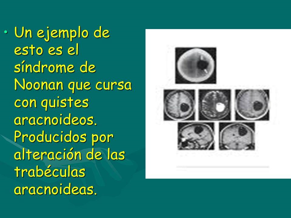 Un ejemplo de esto es el síndrome de Noonan que cursa con quistes aracnoideos.