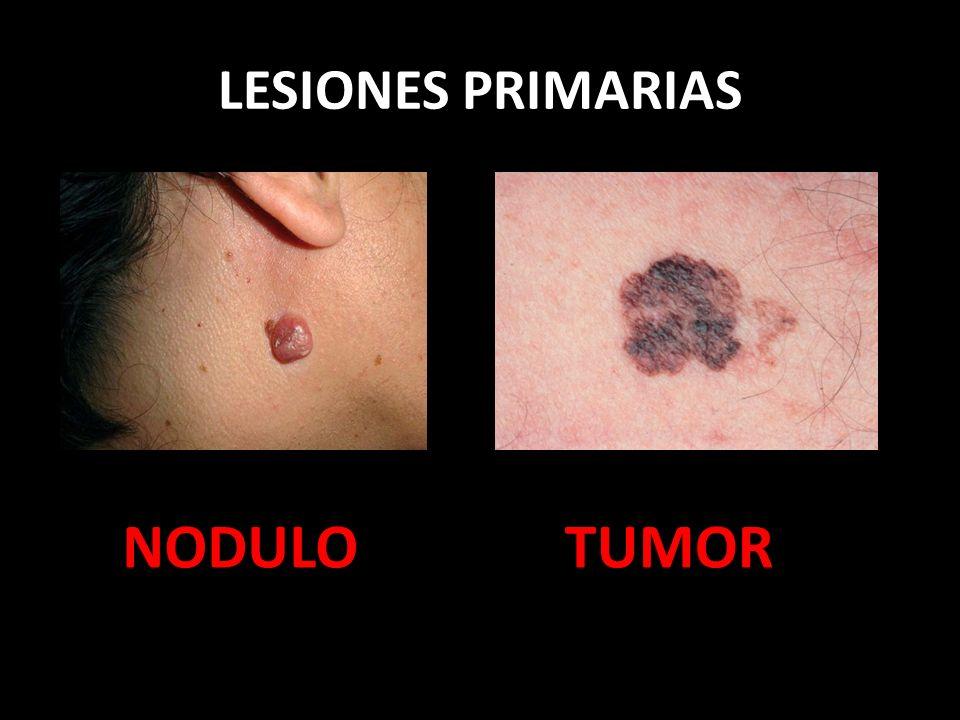 LESIONES PRIMARIAS NODULO TUMOR