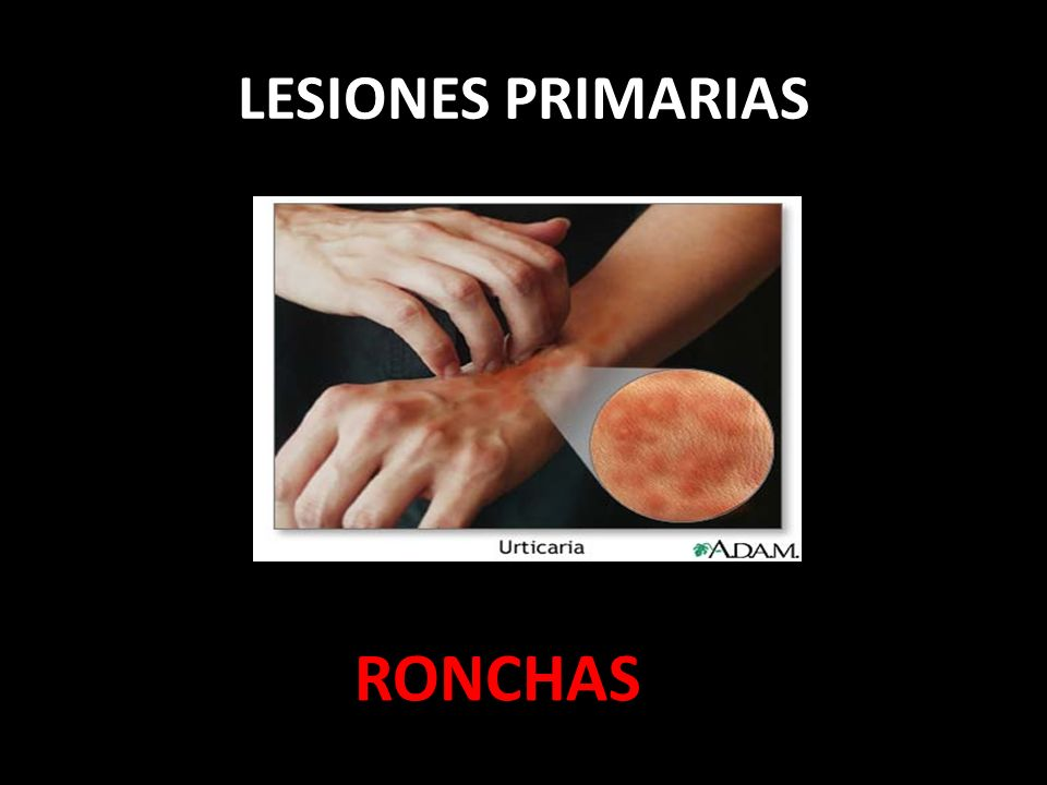 LESIONES PRIMARIAS RONCHAS