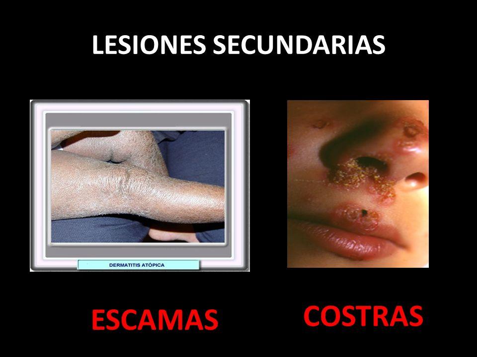 LESIONES SECUNDARIAS COSTRAS ESCAMAS
