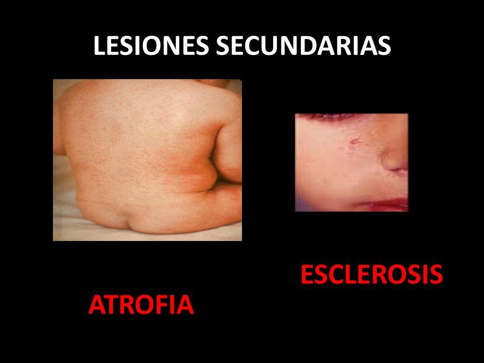 LESIONES SECUNDARIAS ESCLEROSIS ATROFIA