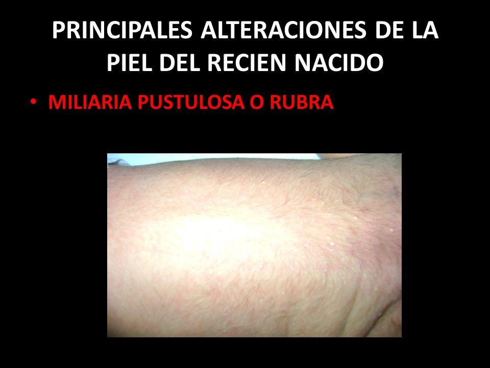 PRINCIPALES ALTERACIONES DE LA PIEL DEL RECIEN NACIDO