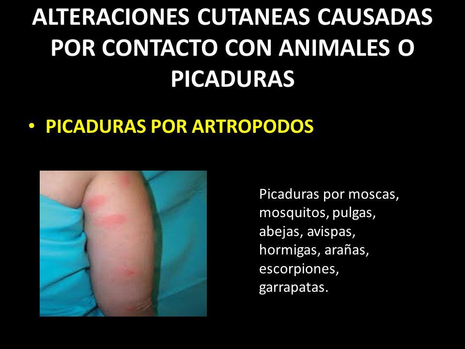 ALTERACIONES CUTANEAS CAUSADAS POR CONTACTO CON ANIMALES O PICADURAS