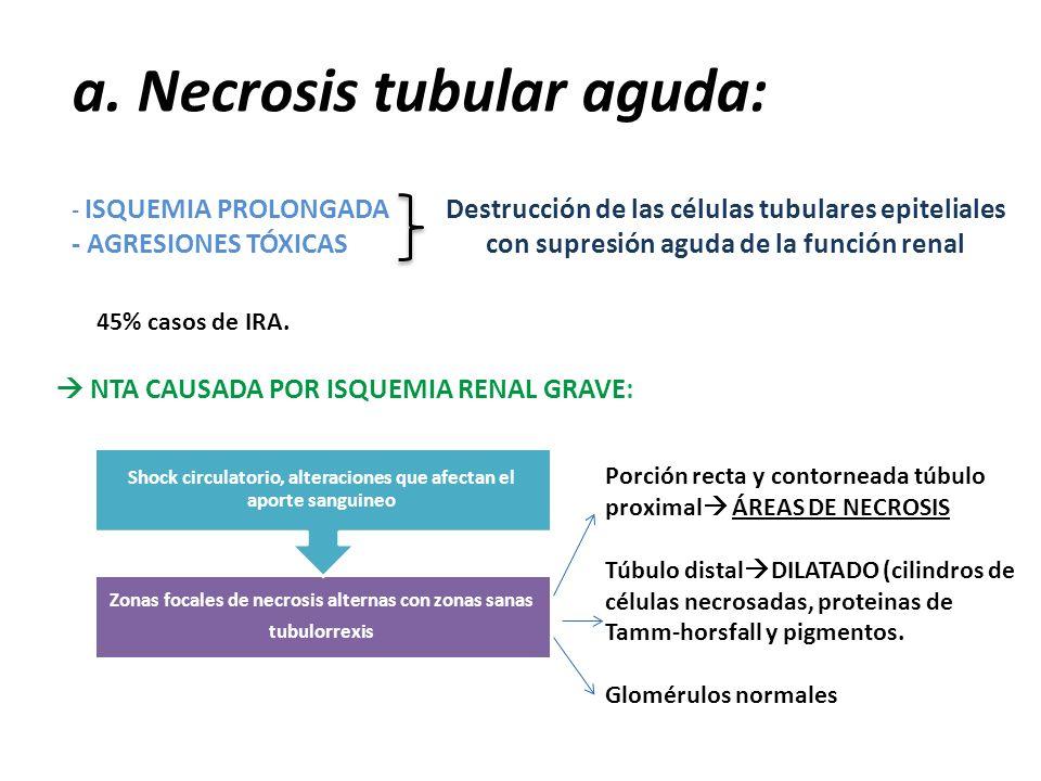 a. Necrosis tubular aguda: