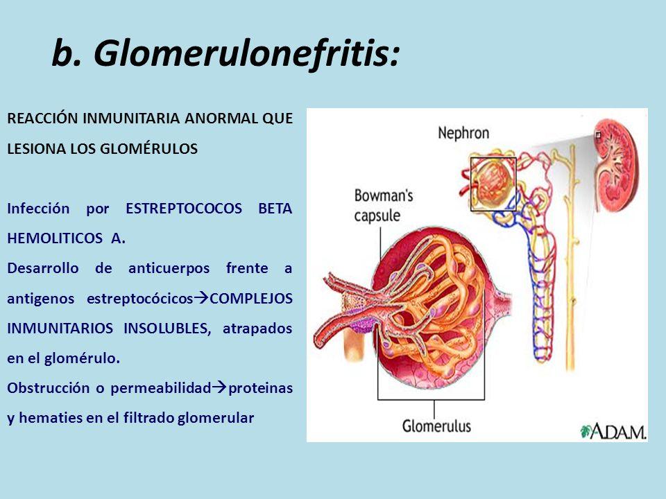 b. Glomerulonefritis: REACCIÓN INMUNITARIA ANORMAL QUE LESIONA LOS GLOMÉRULOS. Infección por ESTREPTOCOCOS BETA HEMOLITICOS A.