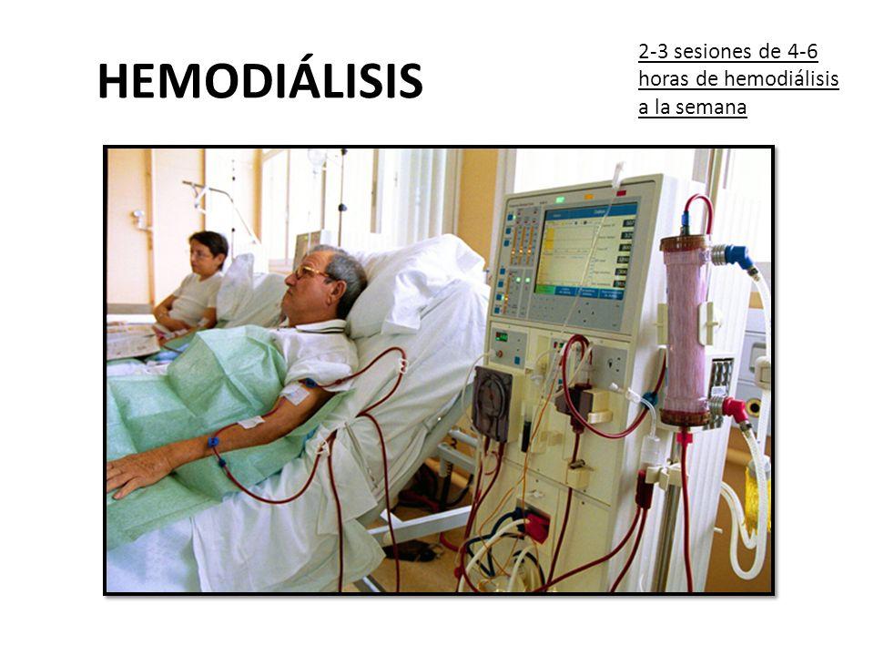 HEMODIÁLISIS 2-3 sesiones de 4-6 horas de hemodiálisis a la semana