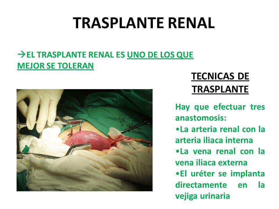 TECNICAS DE TRASPLANTE