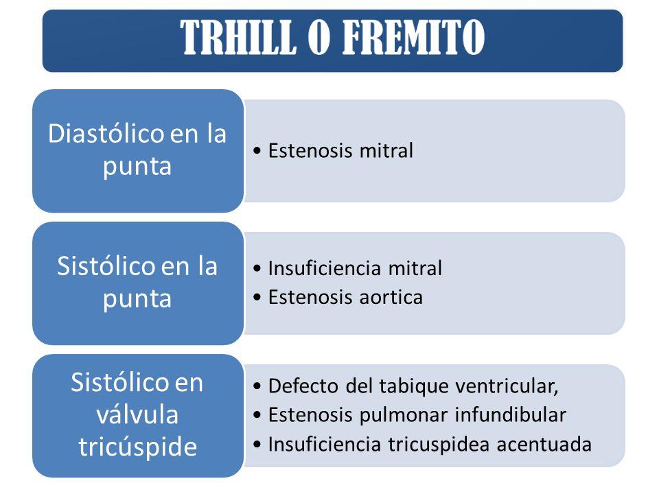 Sistólico en válvula tricúspide