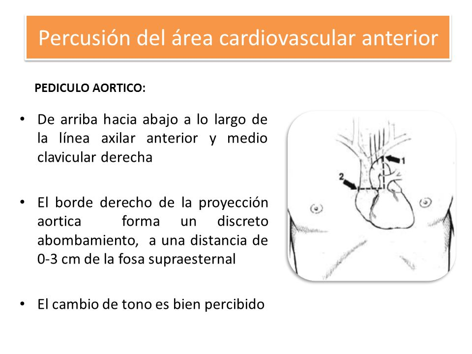 Percusión del área cardiovascular anterior