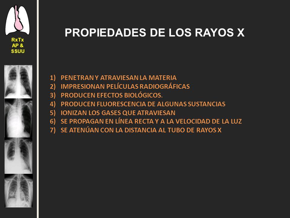Iv curso de radiograf a de t rax lo elemental para ap y sccu ppt descargar - Inmobiliaria casa 10 ...