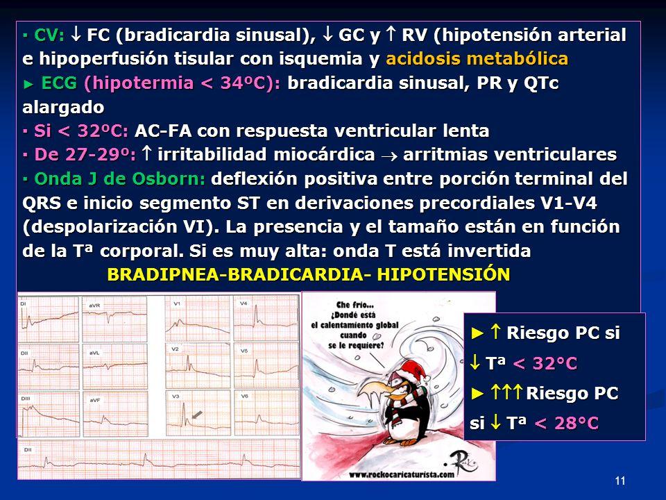 ▪ CV:  FC (bradicardia sinusal),  GC y  RV (hipotensión arterial