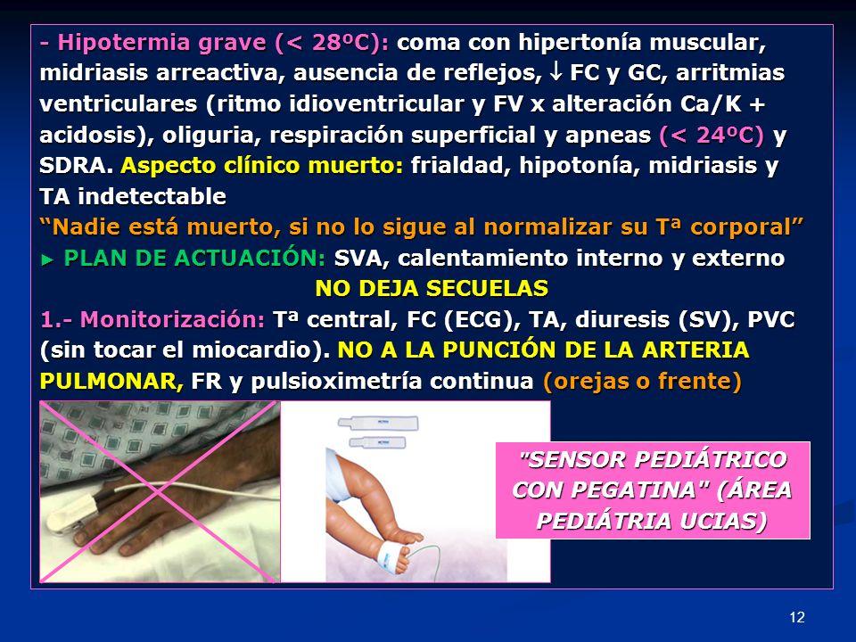 - Hipotermia grave (< 28ºC): coma con hipertonía muscular,