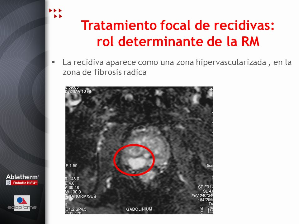Tratamiento focal de recidivas: rol determinante de la RM