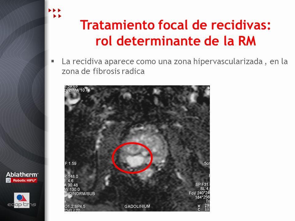 Tratamiento focal de recidivas: rol determinante de la RM