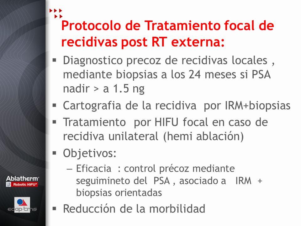 Protocolo de Tratamiento focal de recidivas post RT externa:
