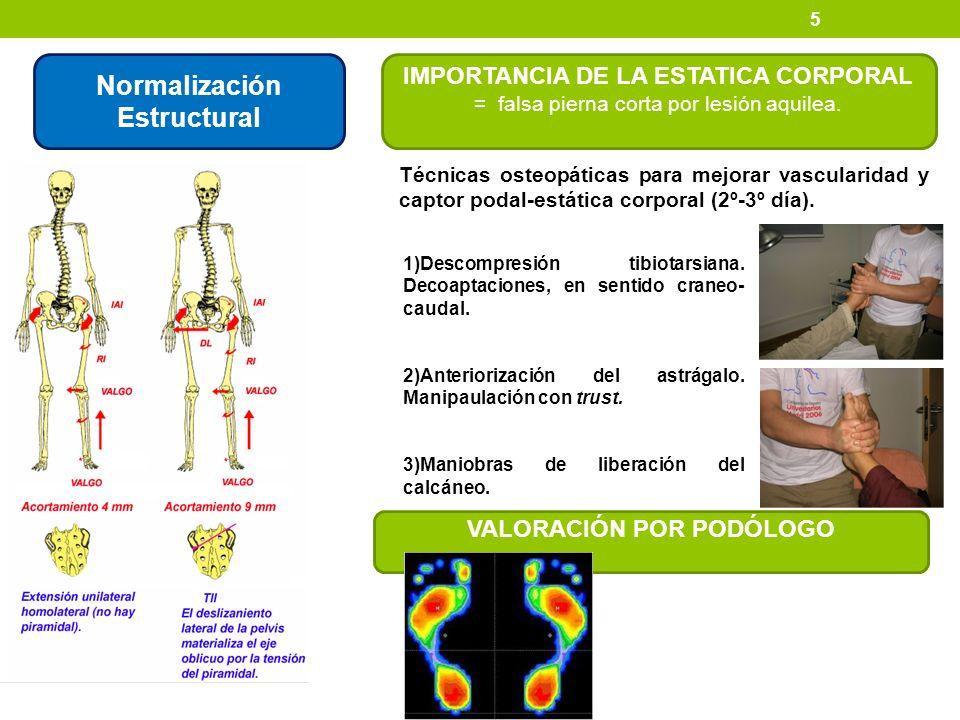 Normalización Estructural