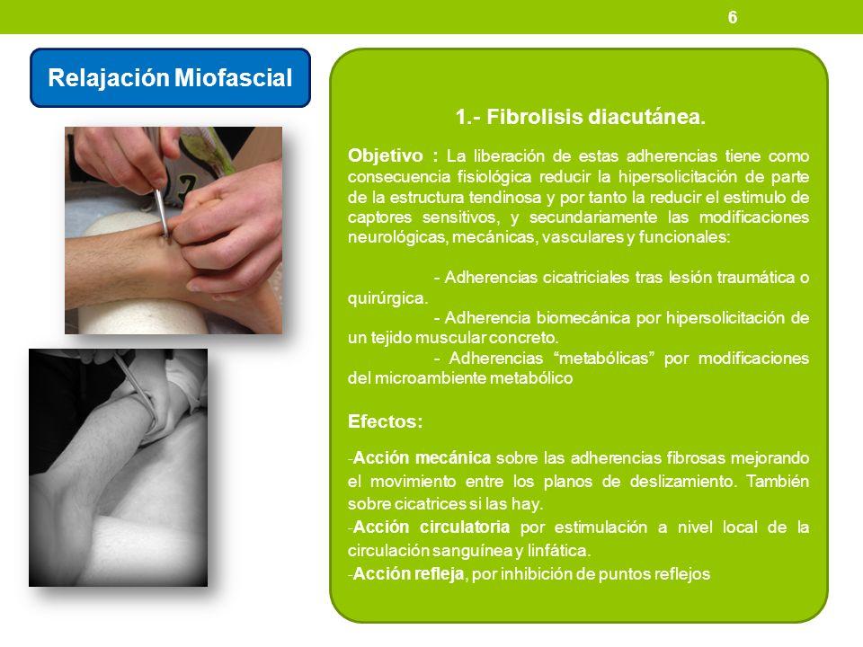 Relajación Miofascial