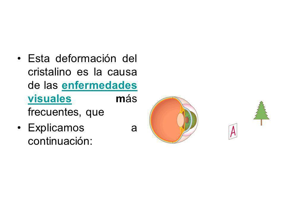 Esta deformación del cristalino es la causa de las enfermedades visuales más frecuentes, que