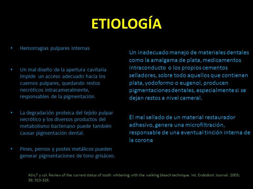 ETIOLOGÍA Hemorragias pulpares internas