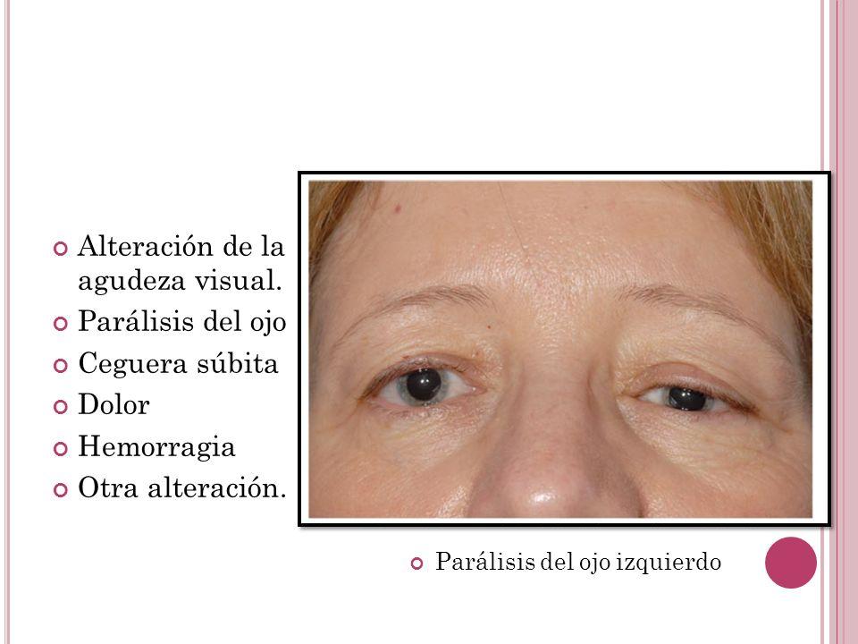 Alteración de la agudeza visual. Parálisis del ojo Ceguera súbita