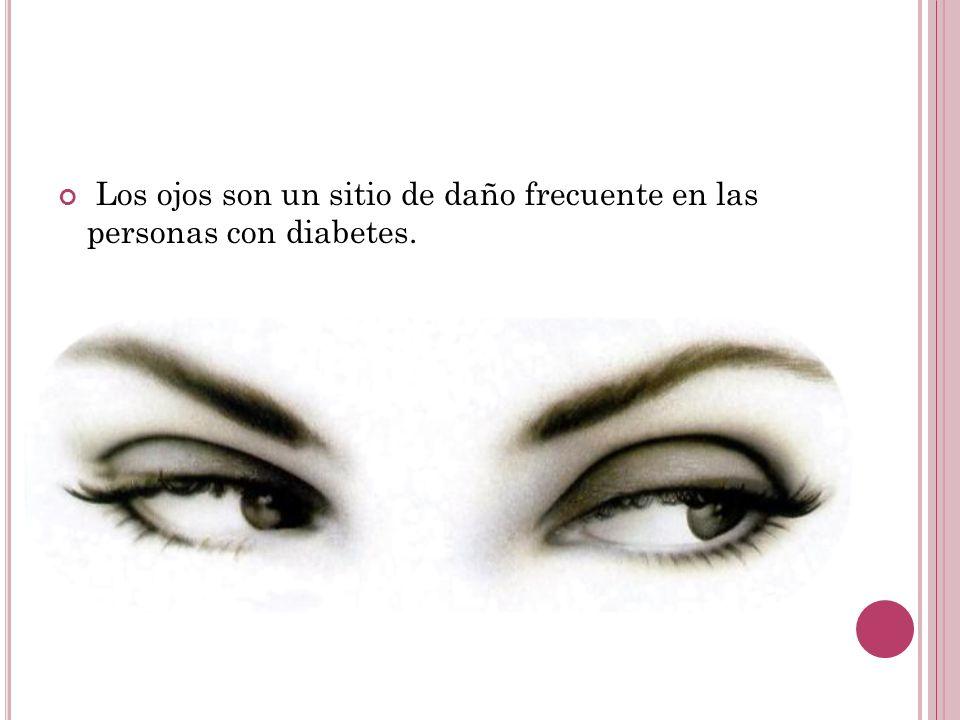 Los ojos son un sitio de daño frecuente en las personas con diabetes.