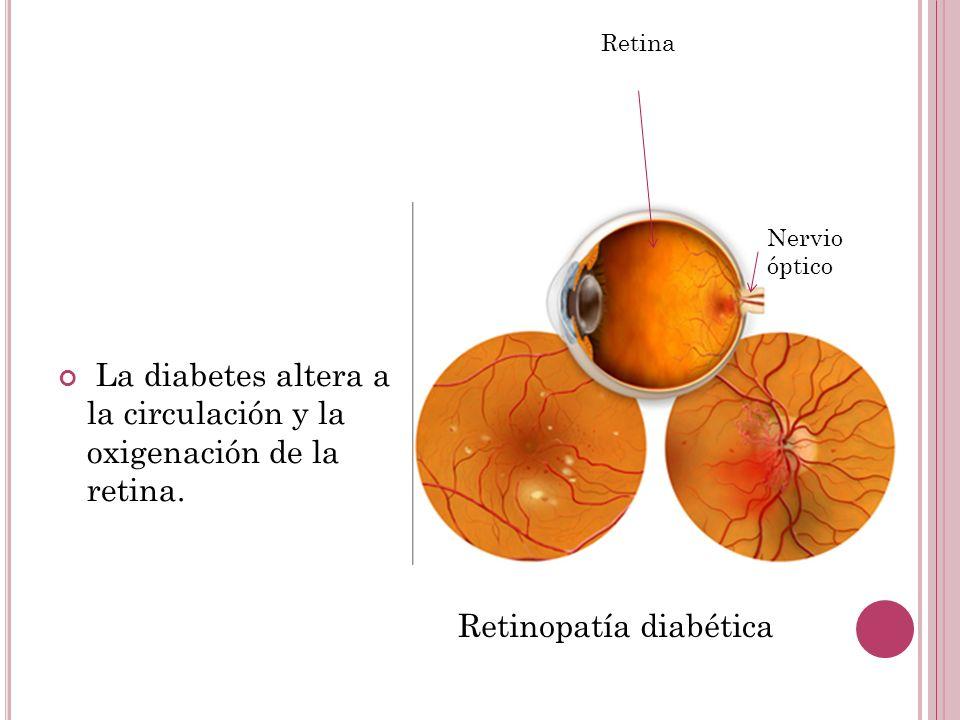 La diabetes altera a la circulación y la oxigenación de la retina.