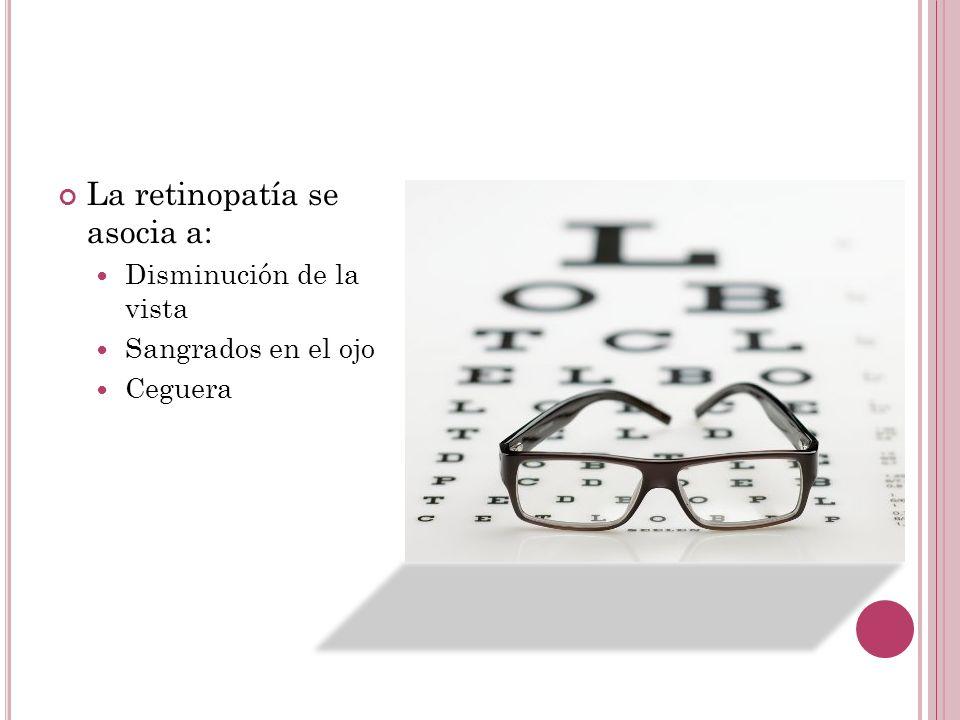La retinopatía se asocia a:
