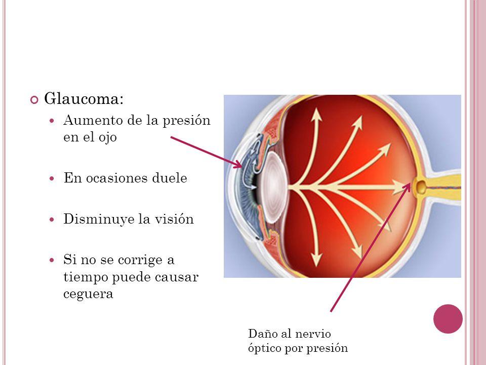 Glaucoma: Aumento de la presión en el ojo En ocasiones duele