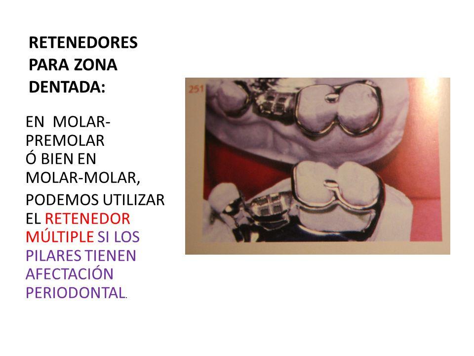 RETENEDORES PARA ZONA DENTADA: