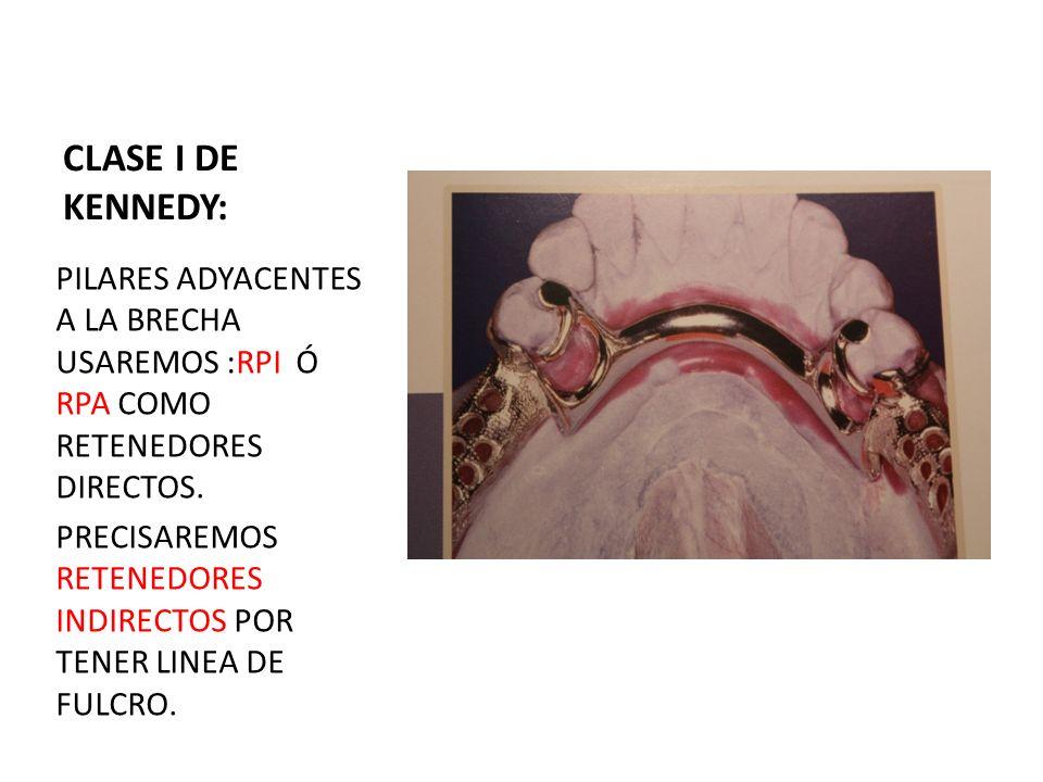 CLASE I DE KENNEDY:PILARES ADYACENTES A LA BRECHA USAREMOS :RPI Ó RPA COMO RETENEDORES DIRECTOS.