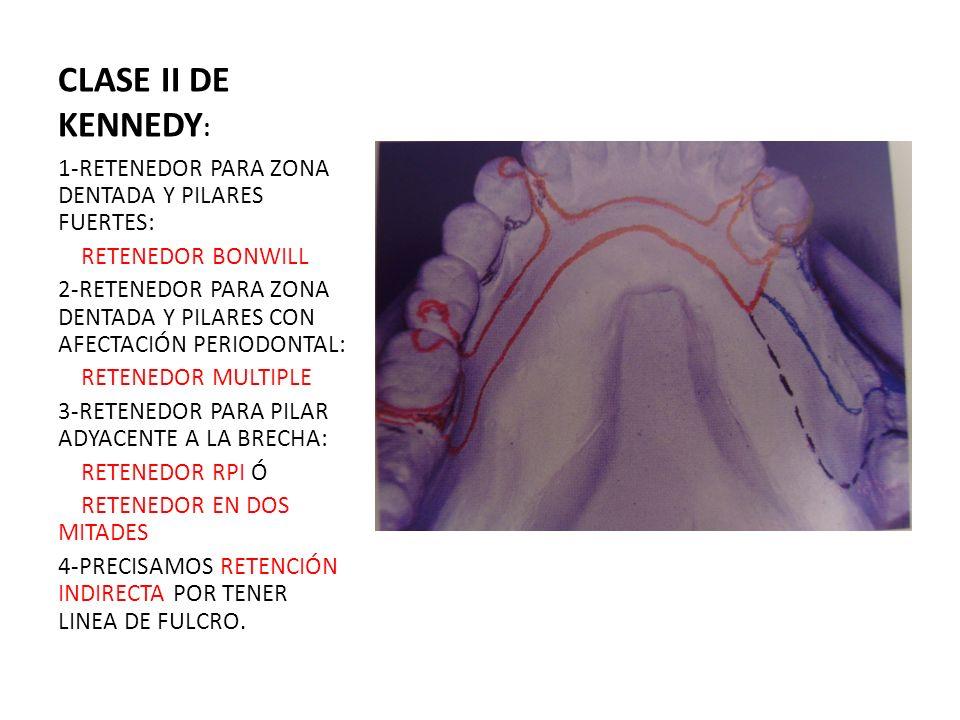 CLASE II DE KENNEDY: 1-RETENEDOR PARA ZONA DENTADA Y PILARES FUERTES: