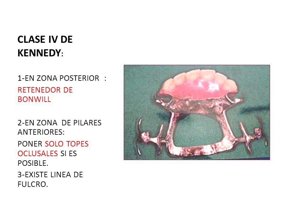 CLASE IV DE KENNEDY: 1-EN ZONA POSTERIOR : RETENEDOR DE BONWILL