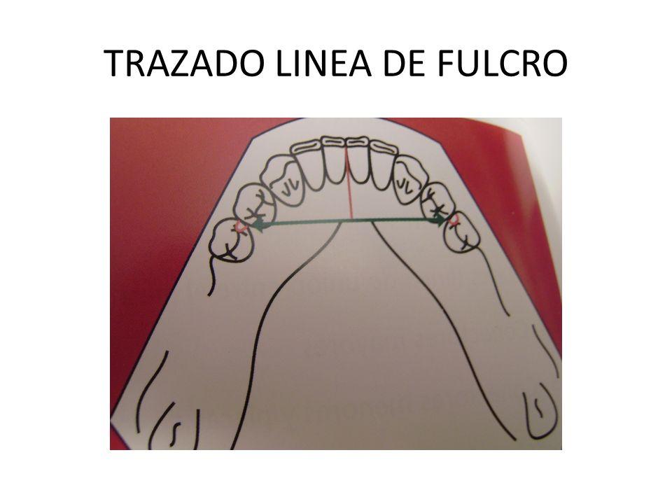 TRAZADO LINEA DE FULCRO