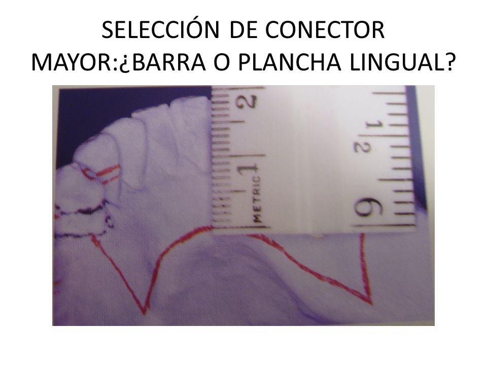 SELECCIÓN DE CONECTOR MAYOR:¿BARRA O PLANCHA LINGUAL
