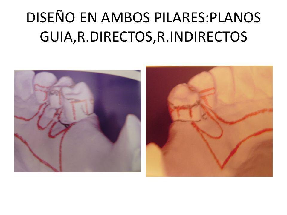 DISEÑO EN AMBOS PILARES:PLANOS GUIA,R.DIRECTOS,R.INDIRECTOS