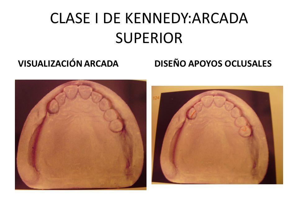 CLASE I DE KENNEDY:ARCADA SUPERIOR