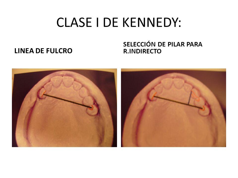 CLASE I DE KENNEDY: LINEA DE FULCRO