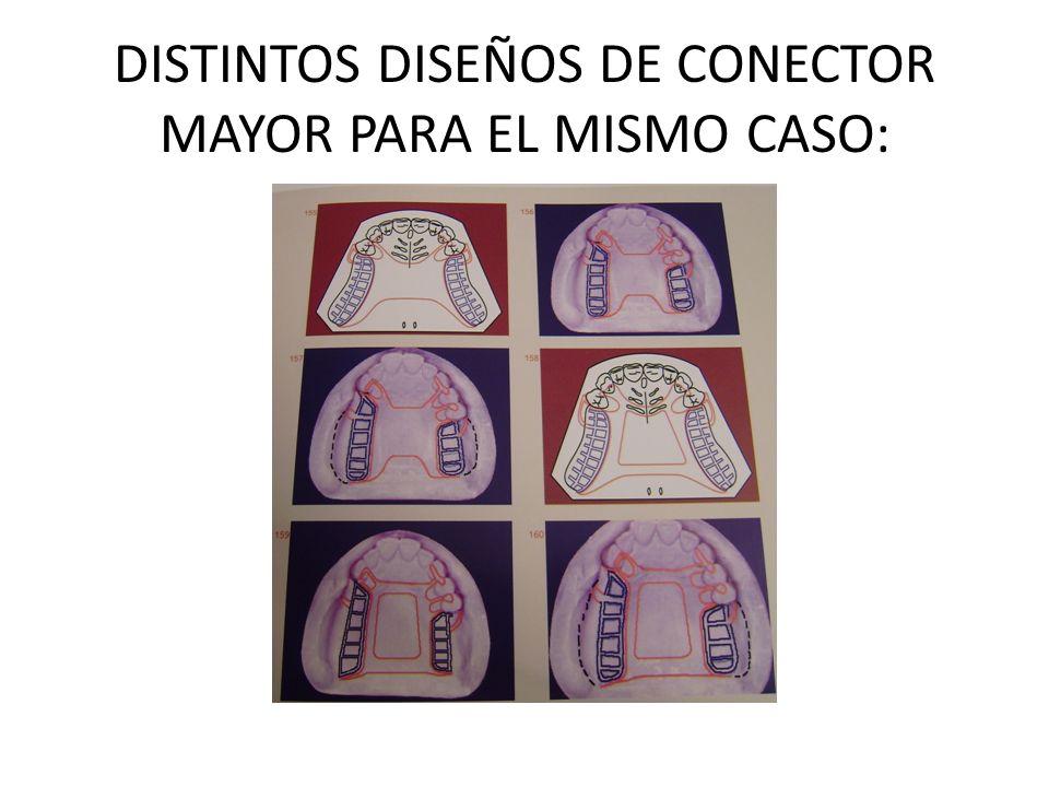 DISTINTOS DISEÑOS DE CONECTOR MAYOR PARA EL MISMO CASO: