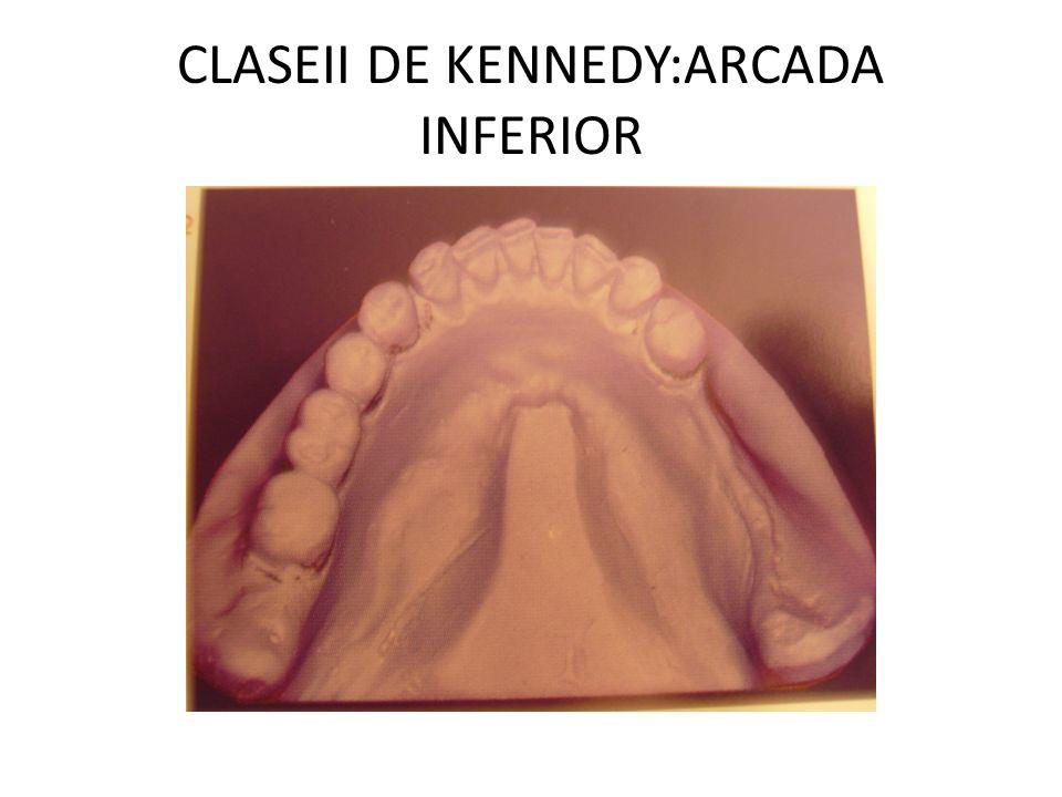 CLASEII DE KENNEDY:ARCADA INFERIOR