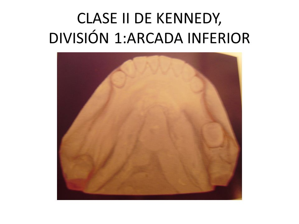 CLASE II DE KENNEDY, DIVISIÓN 1:ARCADA INFERIOR