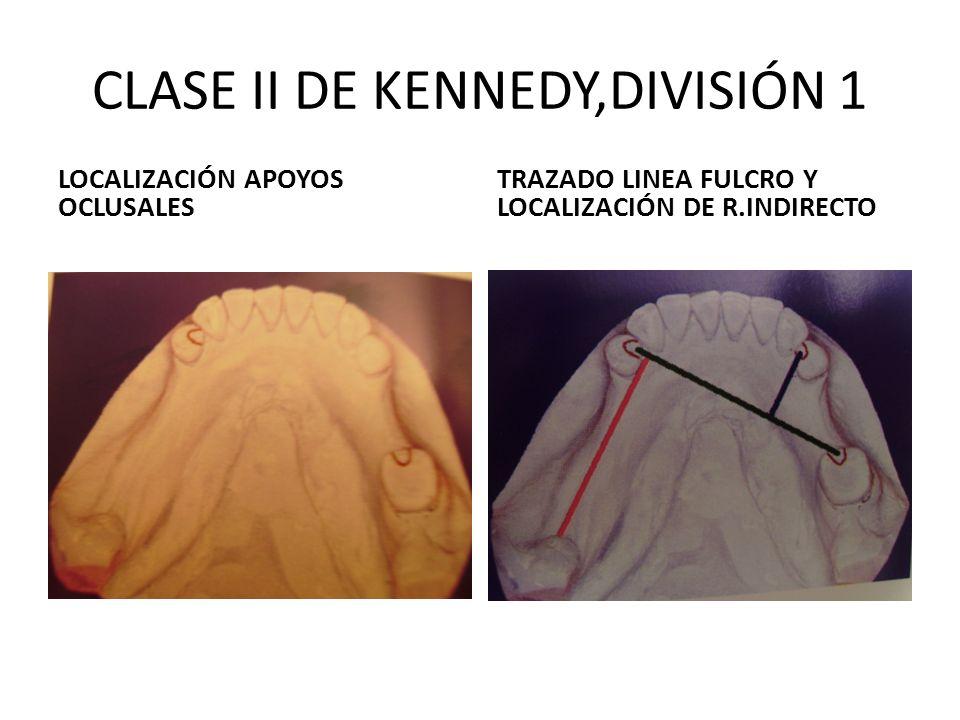 CLASE II DE KENNEDY,DIVISIÓN 1