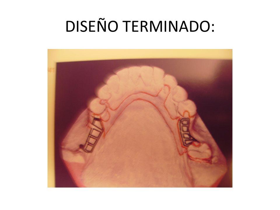 DISEÑO TERMINADO: