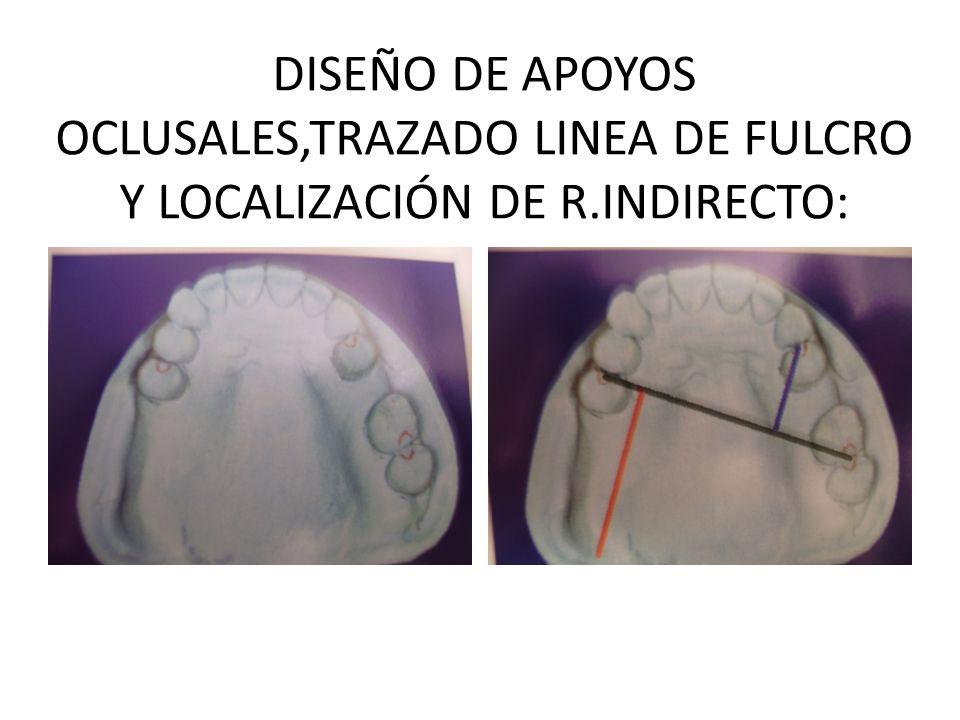 DISEÑO DE APOYOS OCLUSALES,TRAZADO LINEA DE FULCRO Y LOCALIZACIÓN DE R