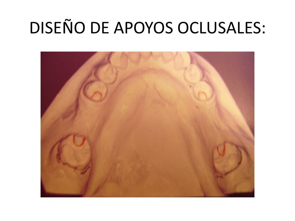 DISEÑO DE APOYOS OCLUSALES: