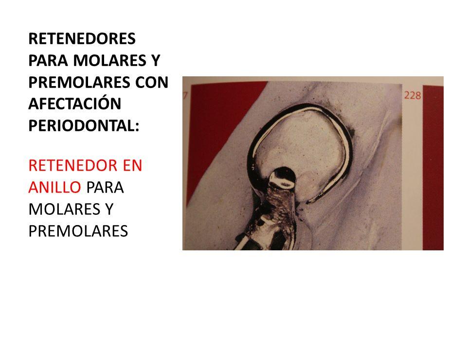 RETENEDORES PARA MOLARES Y PREMOLARES CON AFECTACIÓN PERIODONTAL: