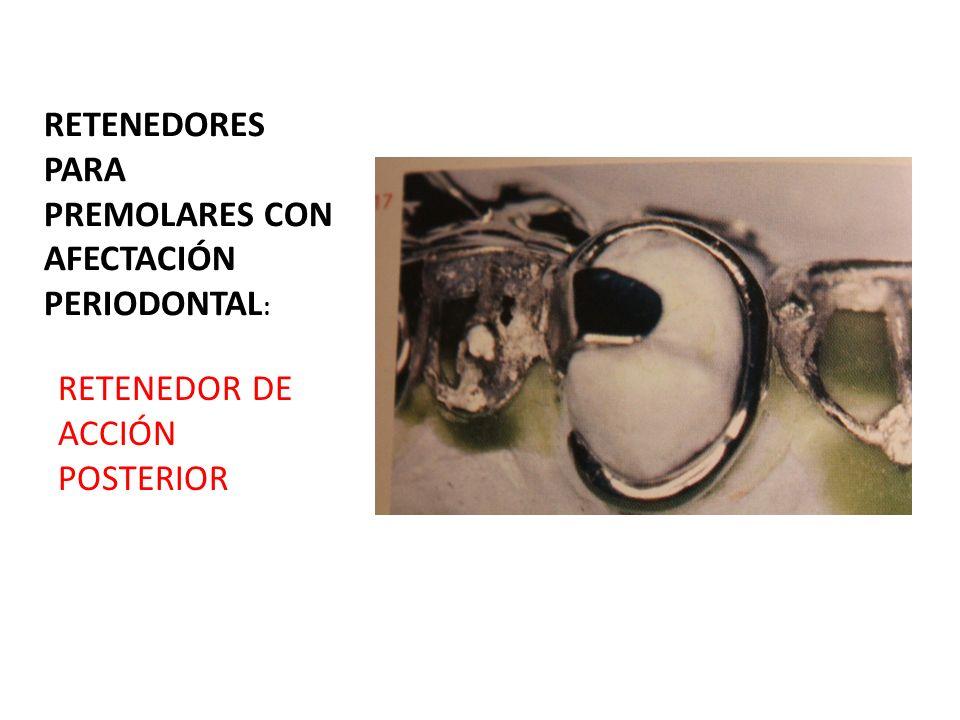 RETENEDORES PARA PREMOLARES CON AFECTACIÓN PERIODONTAL: