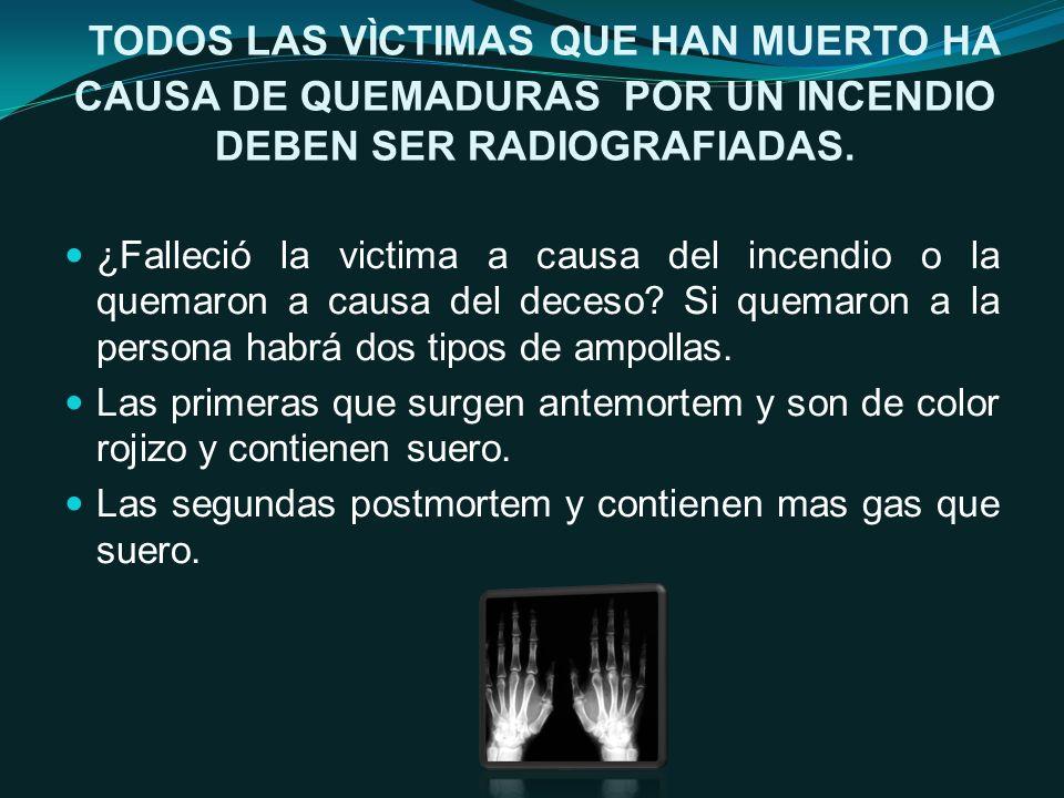 TODOS LAS VÌCTIMAS QUE HAN MUERTO HA CAUSA DE QUEMADURAS POR UN INCENDIO DEBEN SER RADIOGRAFIADAS.