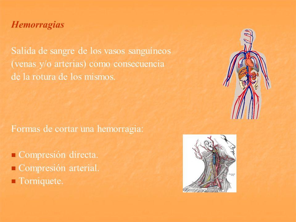 Hemorragias Salida de sangre de los vasos sanguíneos. (venas y/o arterias) como consecuencia. de la rotura de los mismos.