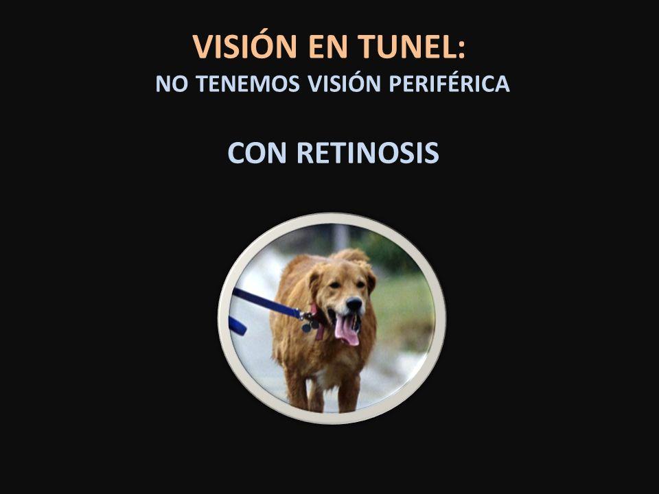 VISIÓN EN TUNEL: NO TENEMOS VISIÓN PERIFÉRICA