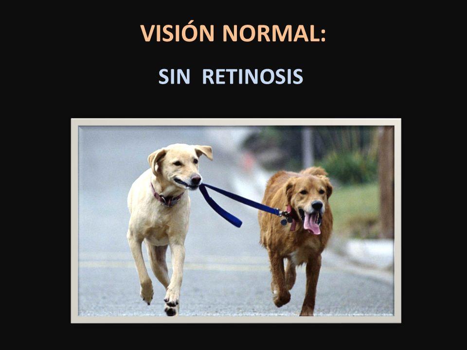 VISIÓN NORMAL: SIN RETINOSIS